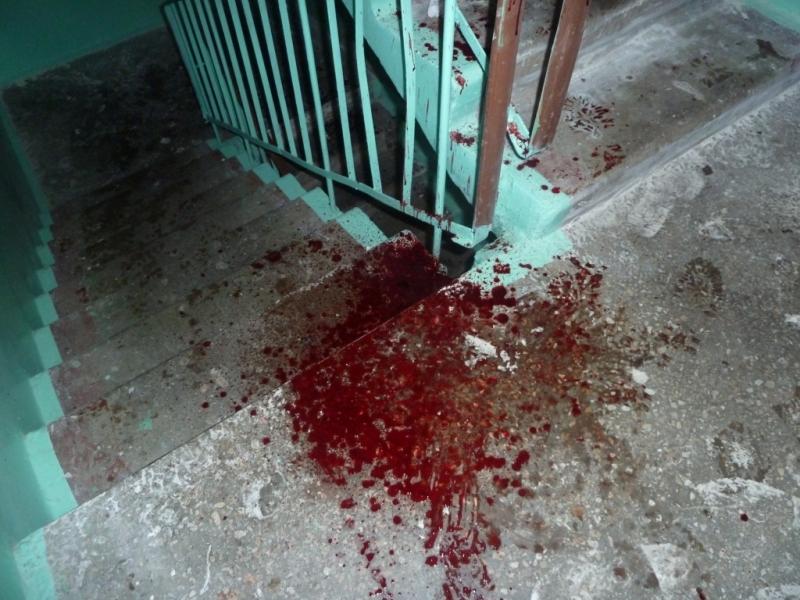 14-летнего ребенка ранили ножом вчера вечером вЧереповце